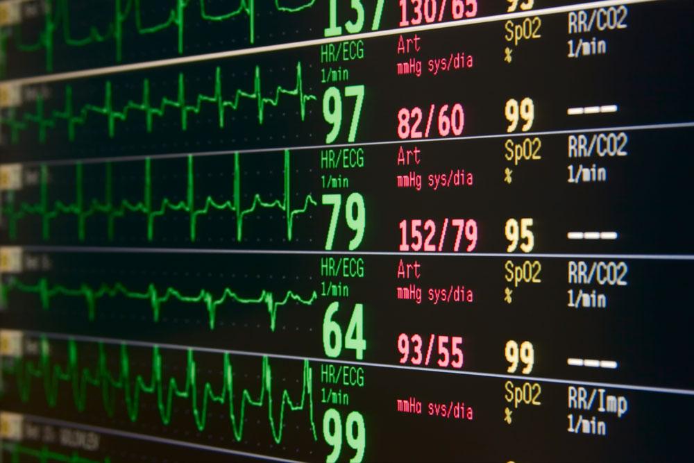 intensive care unit monitor