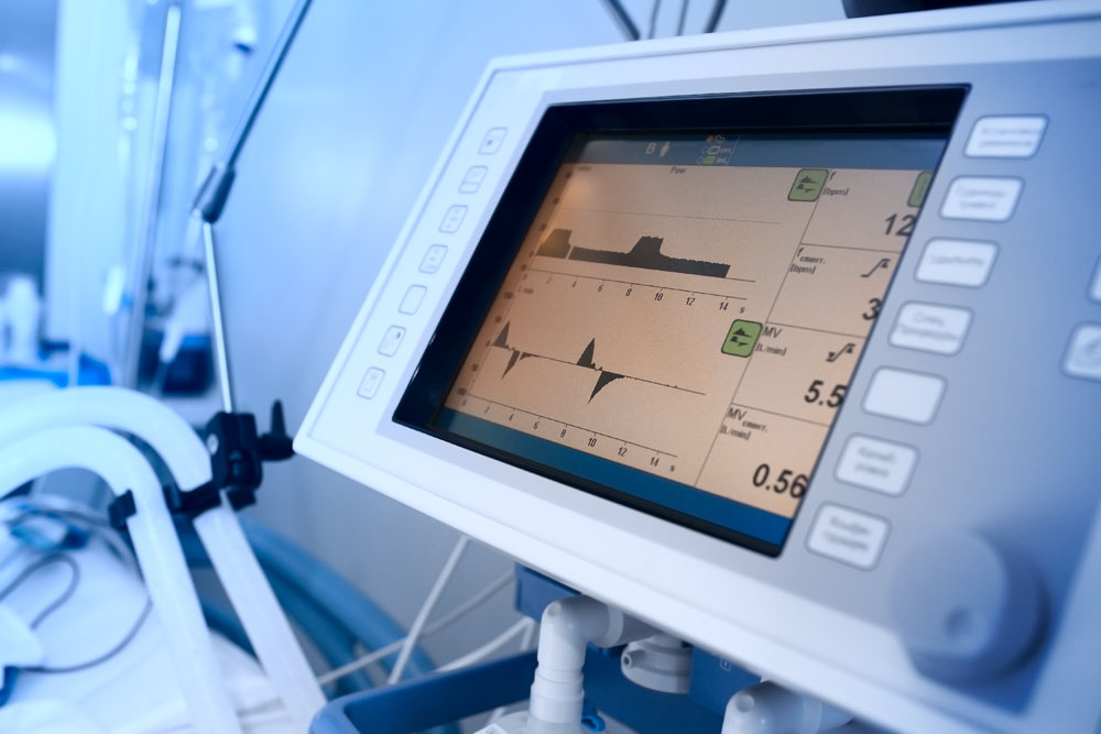 Monitoring of mechanically ventilated patient in hospital